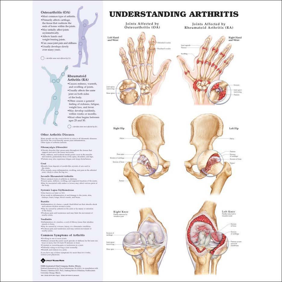 Arthritis Pain Relief | Colorado Pain - Denver, Golden