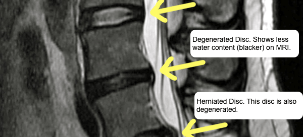 Spinal Cord Stimulation Colorado Pain Denver Golden